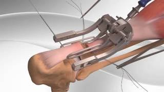 Achilles Tendon Rupture Repair with Arthrex PARS System