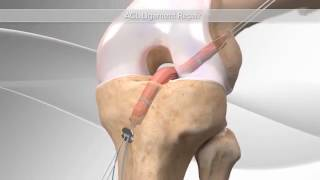 All-Inside ACL Reconstruction