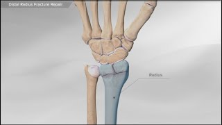 Distal Radius Fracture Repair